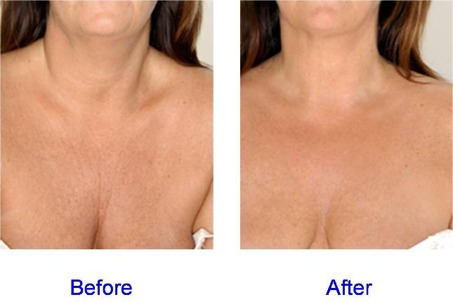 fillers for chest wrinkles